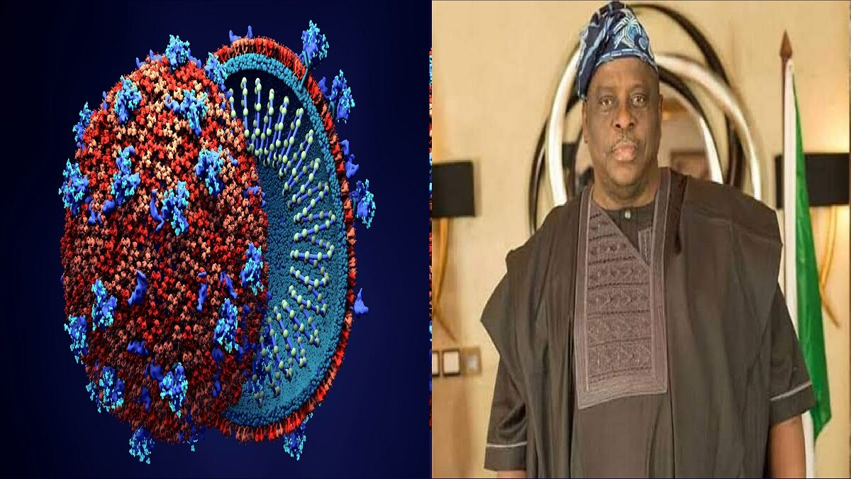 Photo of Coronavirus: Senator Buruji Kashamu dies from COVID-19 complication